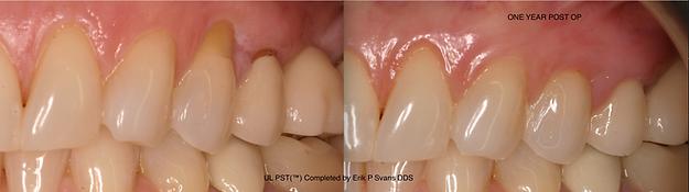 Gum Recession, PST, Pihnole Gum Rejuvenation, Pinhole Surgical Technique, Erik P Svans DDS, Dr Chao