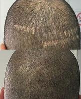 Scalp Hair Simulaton Pigmentation