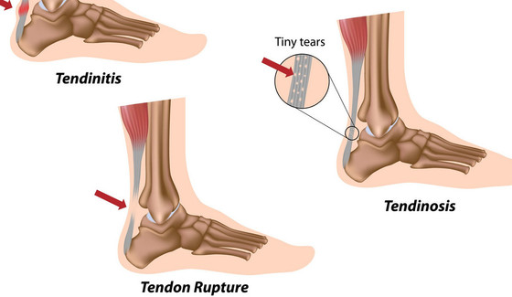 How to Keep Running and Train Smart with an Achilles Injury