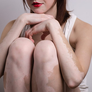 vitiligo_.png