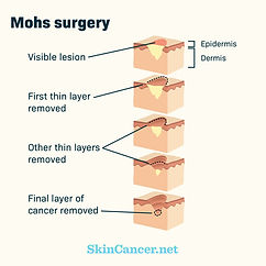 skin_cancer_005.jpg