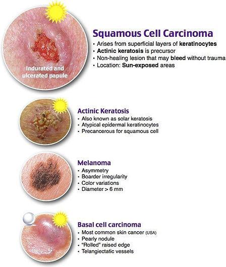 skin cancers.jpg