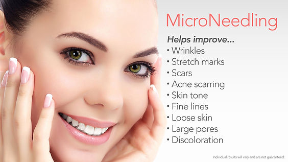 Microneedling-Good-For-2018.jpg