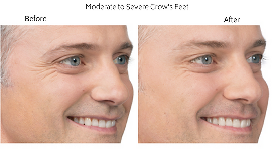 Moderate to Severe Crow's Feet.png