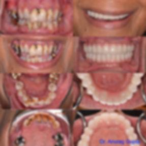 Zircteeth smile makeover Dr. Gupta