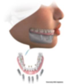 implants graphic_edited.jpg