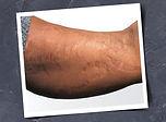 fab-clinic-website-treatment-category-38.jpg