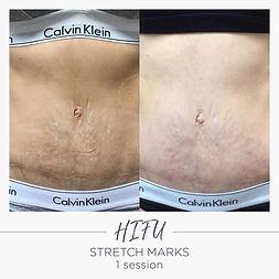 HIFU stretchmarks.jpeg