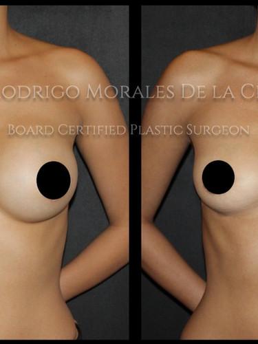 Explantación mamaria