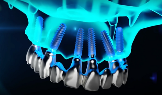 Dental Implants Brighton & Hove