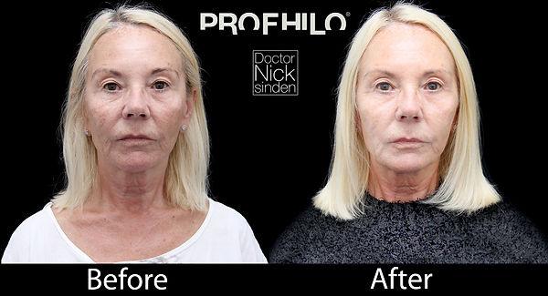Profhilo results new pano 1b.jpg