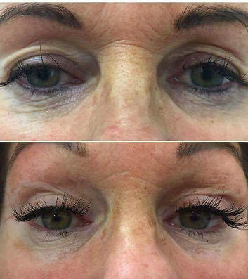Bespoke Aesthetics by Dr Nick Sinden, Leeds, Yorkshire, Botox, Fillers, Anti-wrinkle, Anti-aging, Lip fillers, Skin clinic, Beauty treatments, Dermapen, Profhilo, Non-Surgical Eye Lift