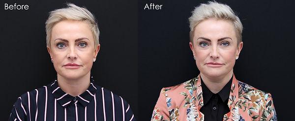 Bespoke Aesthetics by Dr Nick Sinden, Leeds, Yorkshire, Botox, Fillers, Anti-wrinkle, Anti-aging, Lip fillers, Skin clinic, Beauty treatments, Dermapen, Profhilo, Juvederm, Dermaroller