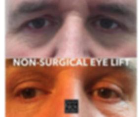 Bespoke Aesthetics by Dr Nick Sinden, Leeds, Yorkshire, Botox, Fillers, Anti-wrinkle, Anti-aging, Lip fillers, Skin clinic, Beauty treatments, Dermapen, Profhilo, Non-Surgical Eye Lift