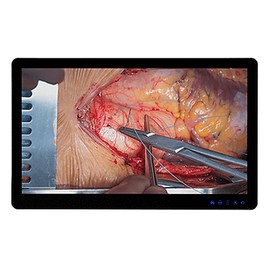 "55"" Medical Monitor with 4K resolution"