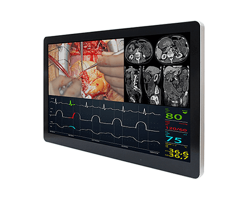 "ST821GM-MD 21.5 "" Medical Grade Monitor"