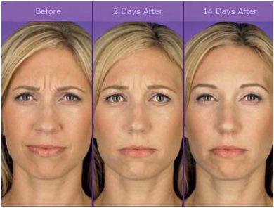 Botox Fort Lauderdale.jpg