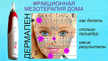 фракционная мезотерапия, фракционная мезотерапия дома, микронидлинг, микронидлинг дома, мезотерапия дома, дермапен, мезопен, дермапен процедура, дермапен дома, как делать фракционную мезотерапию, как делать микронидлинг, длина иголок дермапен, иголки зоны лица, линии лица дермапен, результаты дермапен,