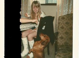 Congenital Bilateral Hip Dysplasia - My Story