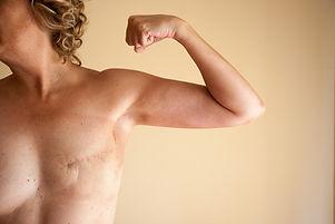 DWH Breast.jpg