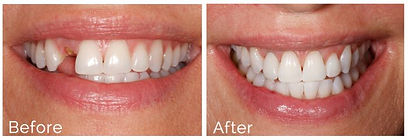 dental-implants-before-after-696x238.jpg