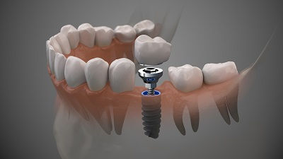 implants-2 picture.jpg