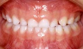 乳歯列の口腔内写真 正面観