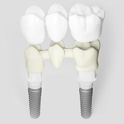 multiple teeth implant bridge
