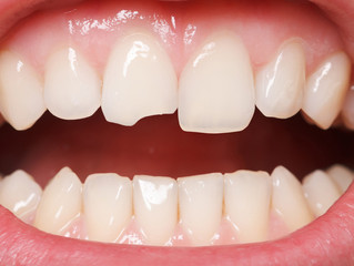 What Are My Options If I Get A Chipped Tooth?