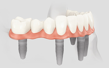 all teeth implant