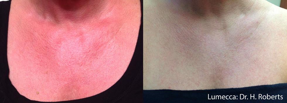 Lumecca Chest Skin.jpg