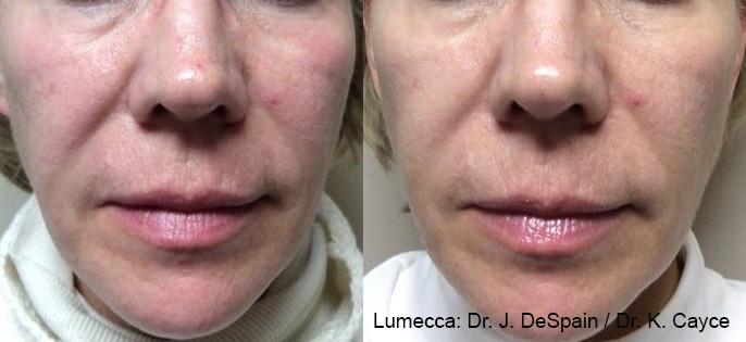 Lumecca  Changed Her Skin.jpg