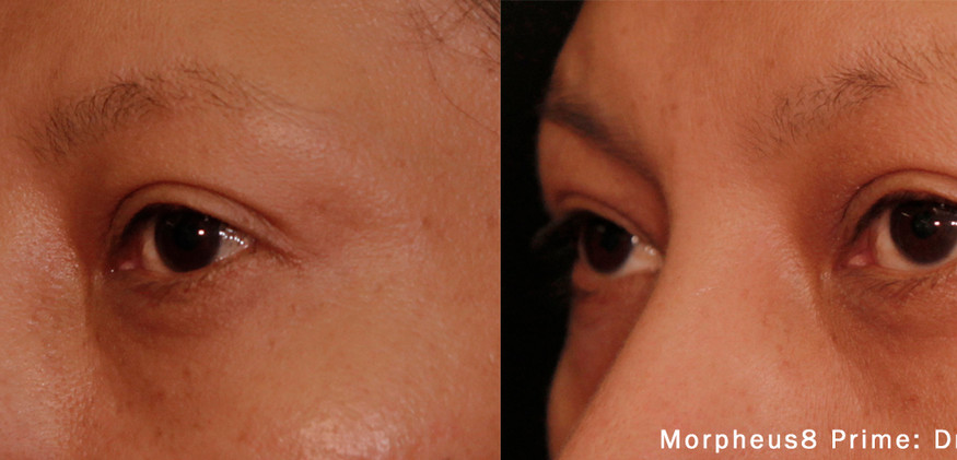 Morpheus 8 Eye Area