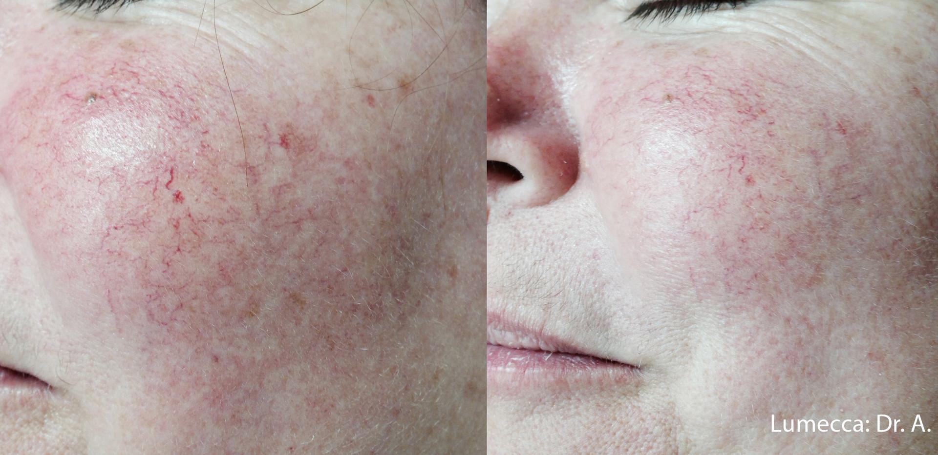 Lumecca  Rosacea Skin.jpg