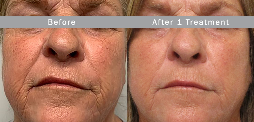 Morpheus 8 Non Surgical Face Lift