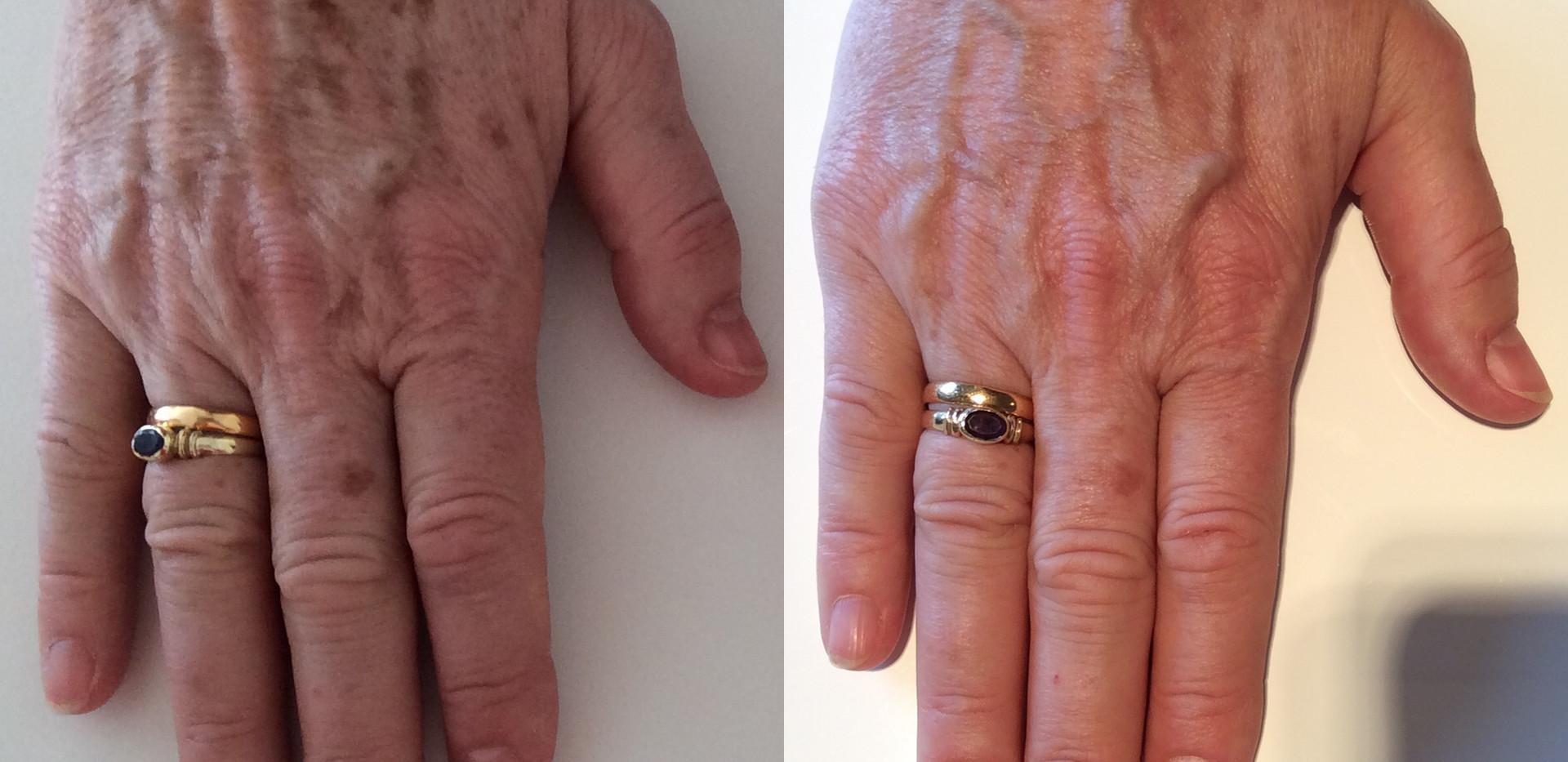 Lumecca Hands.jpg