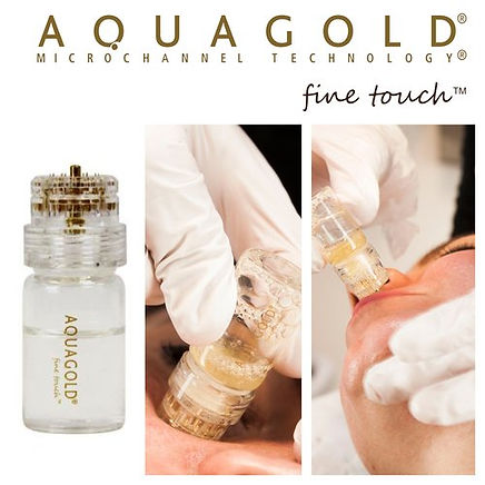 Aquagold+Fine+Touch+EU+&+UK+Distributor.