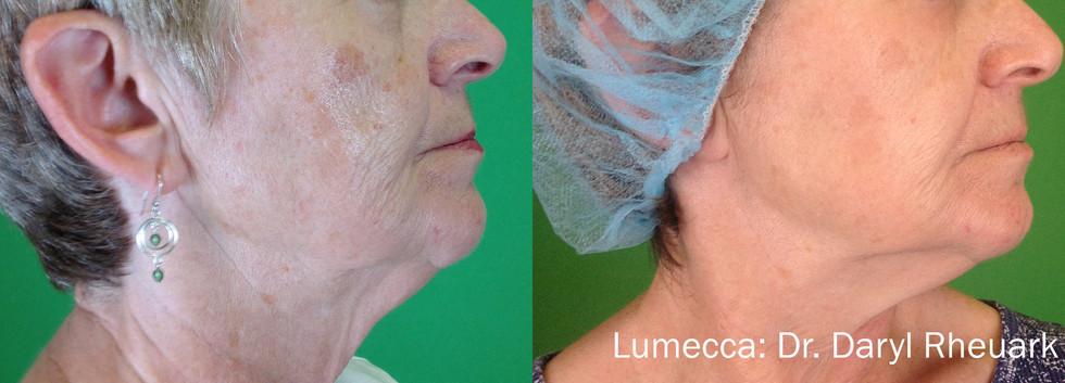 Lumecca  Sun Damaged Skin.jpg