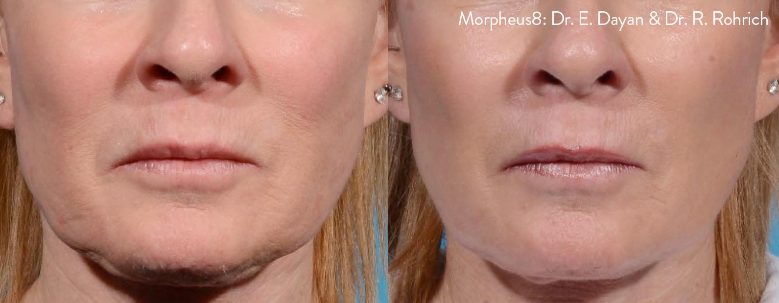 Morpheus 8 Non Surgical Face Lift