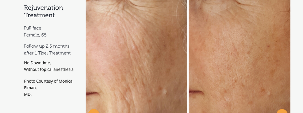 Rejuvenate ageing skin without injecatbles and minimal downtime
