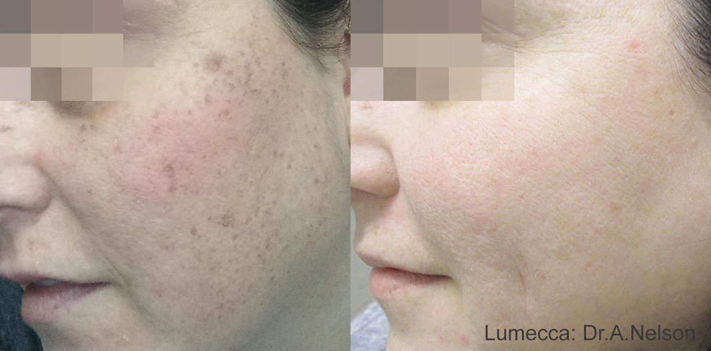 Lumecca Skin.jpg