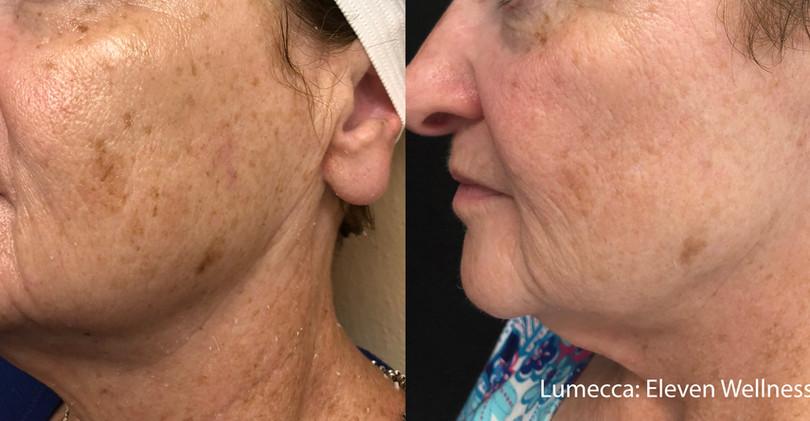 Lumecca Skin Age Spots.jpg