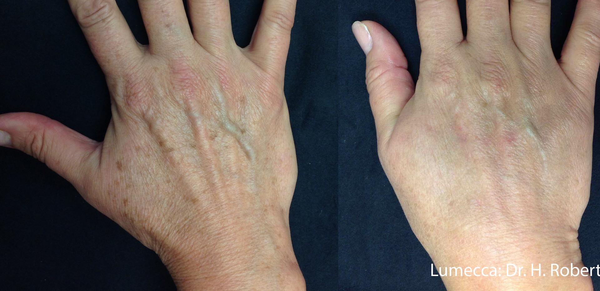 Lumecca Hand Magic.jpg