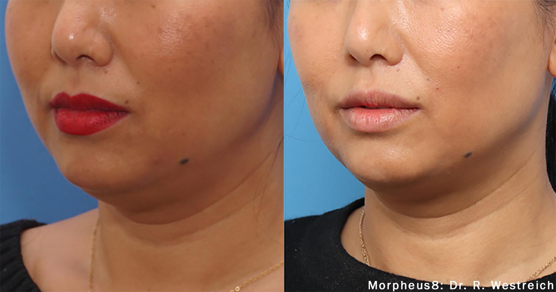 Morpheus8 Non Surgical Face Lift
