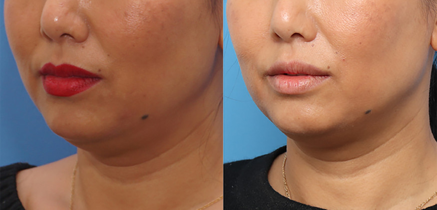 Morpheus8 Non Surgical Face Lift