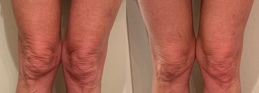 Morpheus 8 Non Surgical Knee Lift