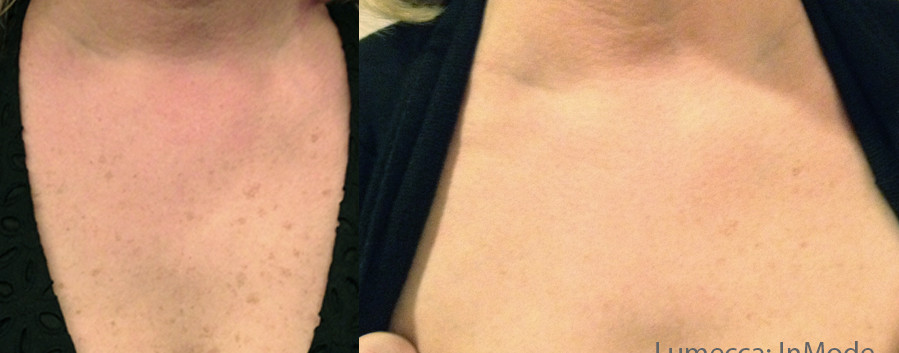 Lumecca Skin damage.jpg