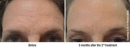 HYDROBOOSTER - FOREHEAD - Before & After