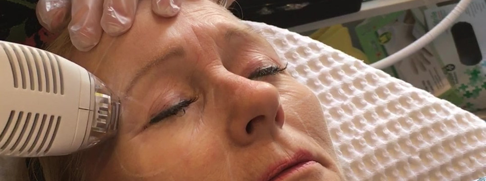 Full Skin Resurfacing in Ablative mode with Tixel at Cosderm.