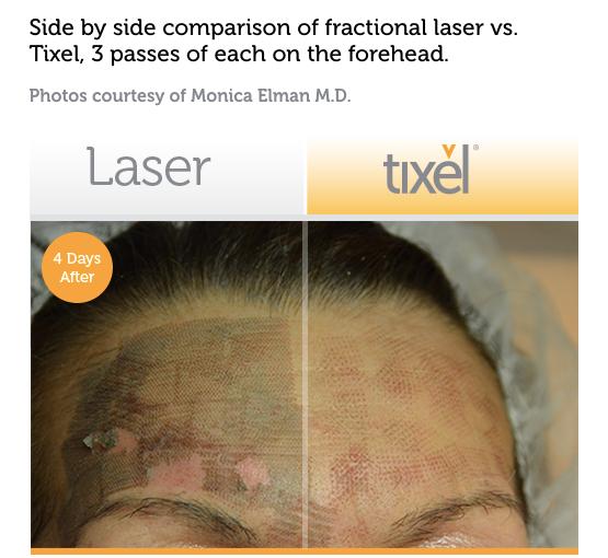 Comparing Tixel to Lasers: minimal trauma